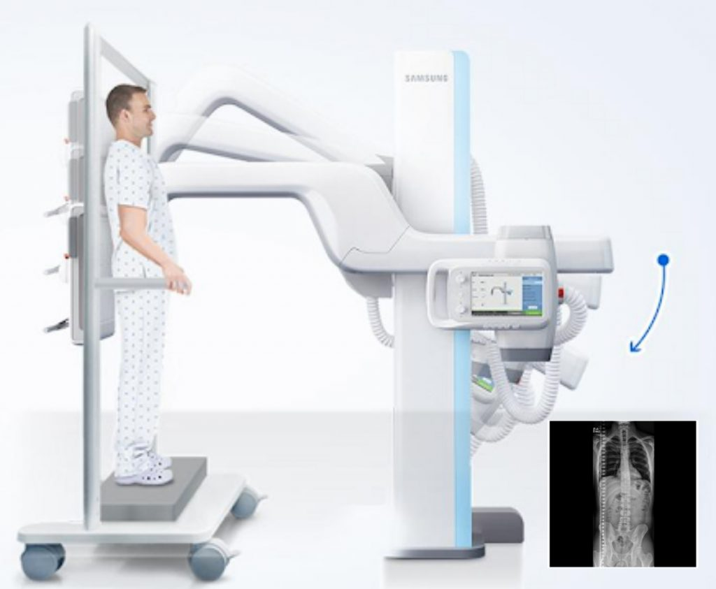 Direct Digital X-ray